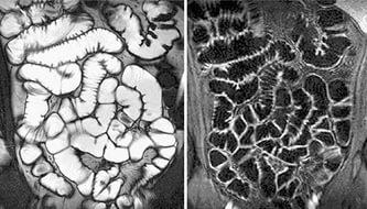 Снимок МРТ кишечника
