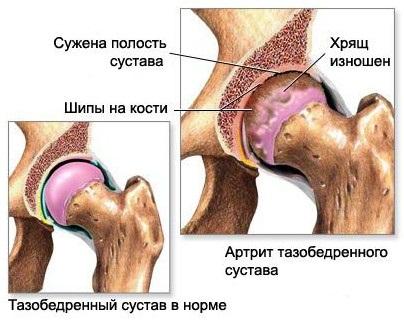 МРТ тазобедренного сустава: строение