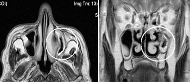 МРТ придаточных пазух носа
