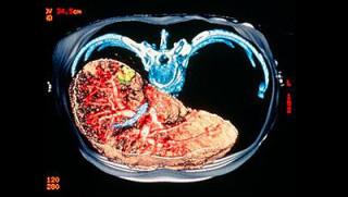 КТ органов брюшной полости