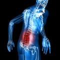 МРТ спины