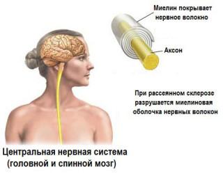 Рассеяный склероз