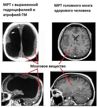 Снимок МРТ головного мозга здорового человека