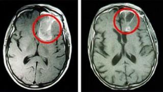 Снимок опухоли на МРТ головного мозга