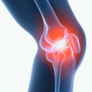 КТ коленного сустав