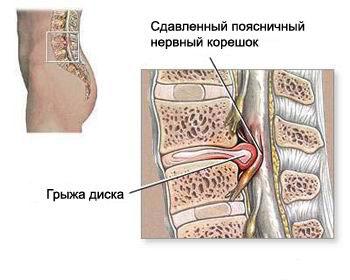 КТ пояснично-крестцового отдела позвоночника