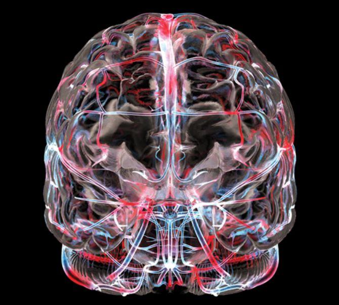 МРТ ангиография сосудов головного мозга