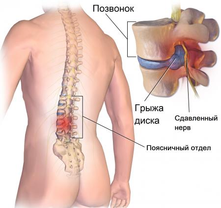 МРТ пояснично-крестцового отдела позвоночника: строение