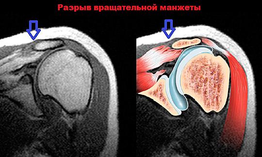 Фото МРТ плечевого сустава