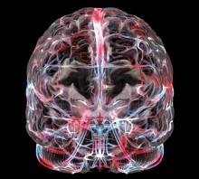 МР-ангиография головы и сосудов головного мозга