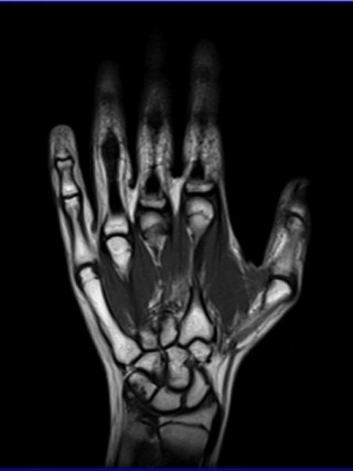 МРТ кисти руки