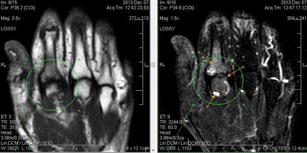 МРТ лучезапястного сустава.