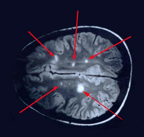 Снимок МРТ рассеянный склероз