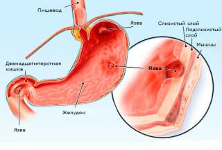 Строение желудка на МРТ