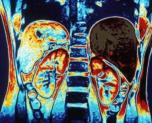 Фото КТ органов брюшной полости с контрастом