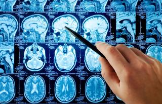 Снимок МРТ головного мозга