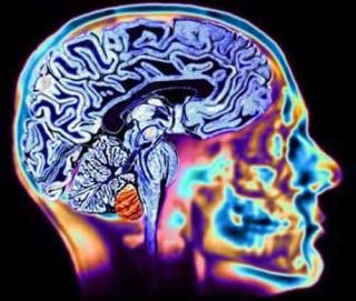 КТ головного мозга с контрастом