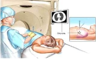 Мультиспиральная компьютерная томография трахеи и бронхов thumbnail