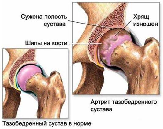 КТ строение тазобедренного сустава