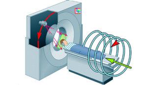 МСКТ томография