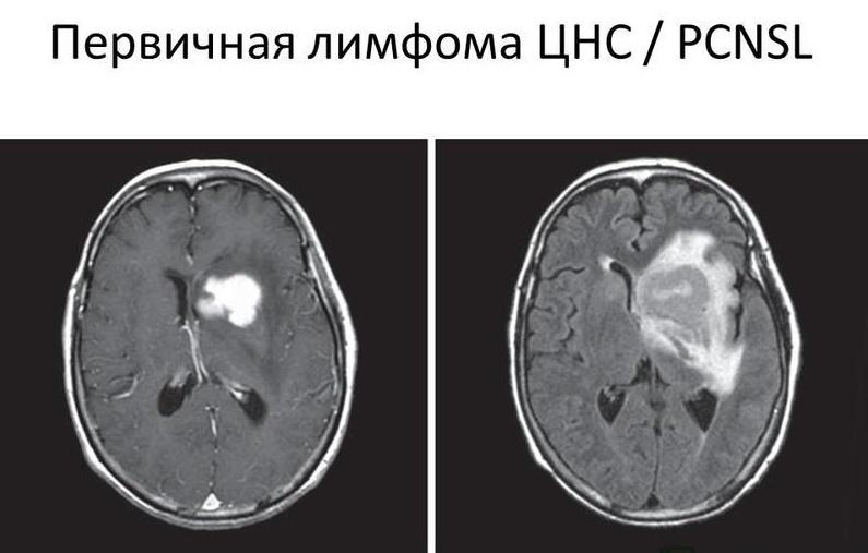Снимок комплексного МРТ головного мозга