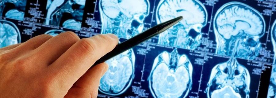 МРТ головы и головного мозга